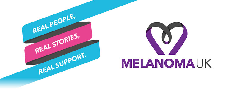 Melanoma UK lotto review